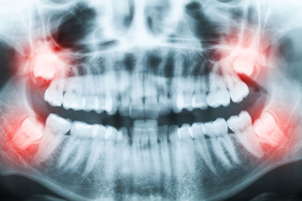 Wisdom teeth removal at Galleria OMS at Roseville, California