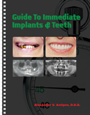 Guide to Immediate Implants and Teeth paperback