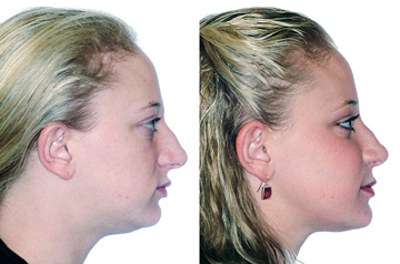 Face, Airway, and Bite Correction surgery profile view