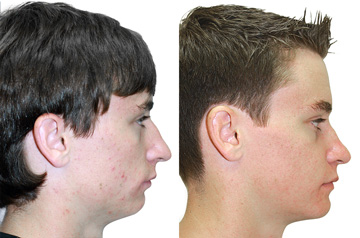 Bite and Face Correction profile view