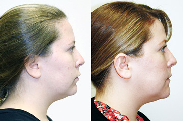 Othognathic surgery patient's profile Before and After view