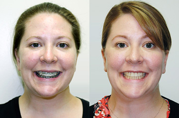 Othognathic surgery patient's front Before and After view with smile
