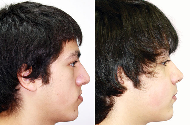Orthognathic surgery case profile before and after picture