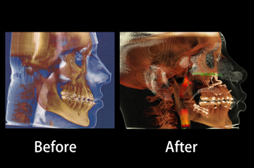 Orthognathic surgery case ct-scan before and after image