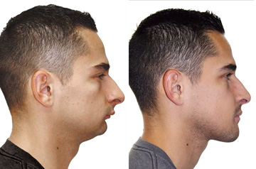 Profile picture before and after corrective jaw surgery