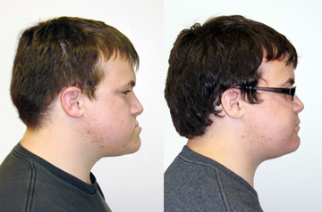 Clockwise Face Rotation and Chin Recontouring profile view