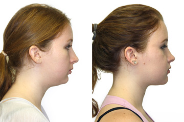 Face, Airway, and Bite Correction profile view no smile