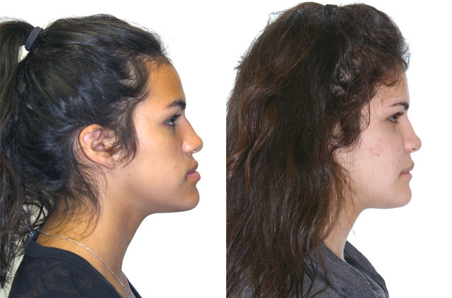 Corrective Jaw Surgery Case Profile No Smile