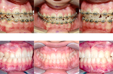 Corrective Jaw Surgery Case Bite Correction