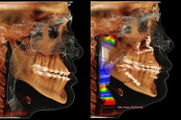 Corrective Jaw Surgery Case CT-Scan