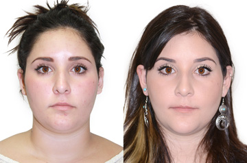 Face asymmetry correction picture before and after