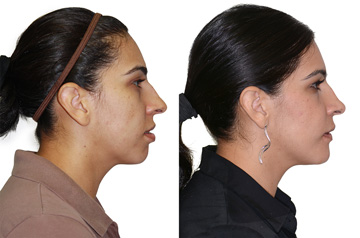 Orthognathic Surgery Case Performed at Mercy Hospital, Sacramento, California