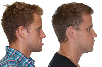 Corrective jaw surgery bite correction and cheek implants profile view no smile
