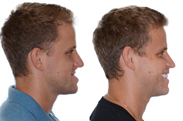 Corrective jaw surgery bite correction and cheek implants profile view with smile