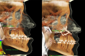 Corrective jaw surgery bite correction and cheek implants CT Scan before and after