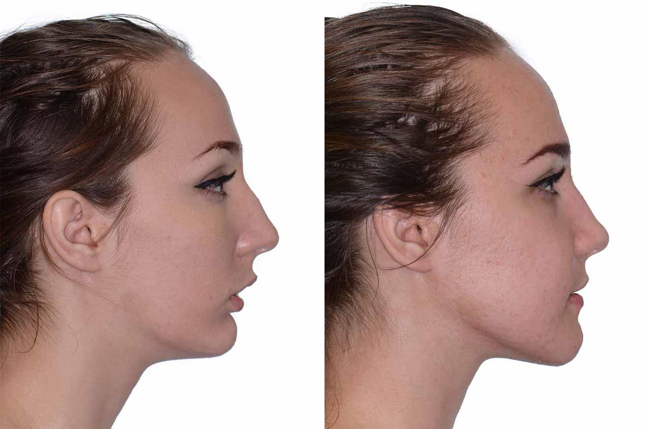 pickerington-jaw-and-facial