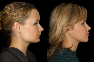 Corrective jaw surgery, chin asymmetry, and bite correction profile view no smile