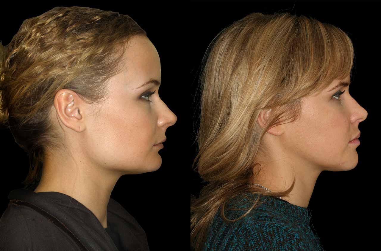 Facial Asymmetry Surgery 109
