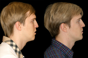 Face, Airway, and Bite Correction profile view