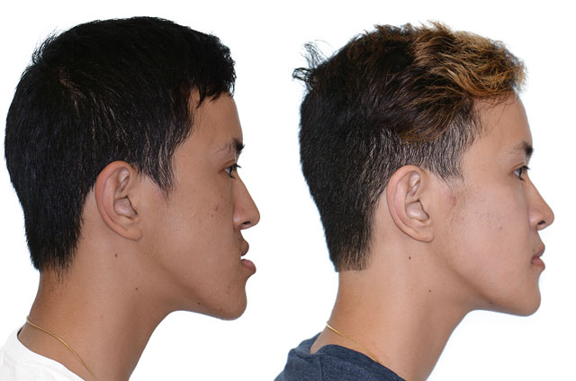 Photographs of the patient orthognathic surgery profile view Before and After with no smile