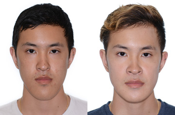Photographs of the patient orthognathic surgery frontal view with no smile