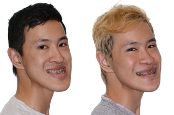 Contouring of the mandibular body chin up with smile before and after