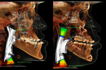 Orthognathic surgery CT-Scan results