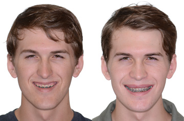 Photographs of the orthognathic surgery patient frontal view with smile