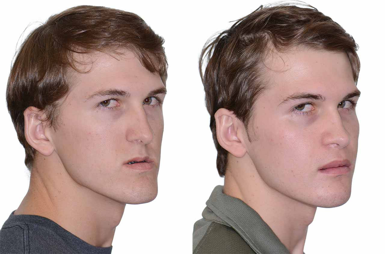 Your gift-giving jaw and facial surgery