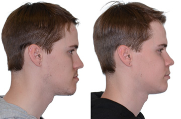 Photographs of the orthognathic surgery patient profile view with no smile