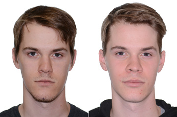 Orthognathic surgery three quaters view Before and After with no smile