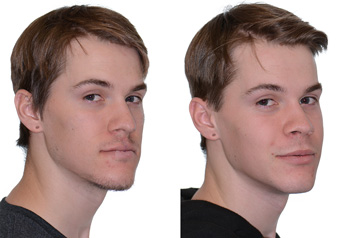Orthognathic surgery frontal view Before and After with no smile