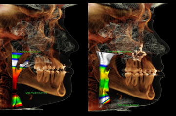 Orthognathic surgery case CT-Scan before and after