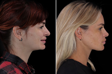 Photographs of the orthognathic surgery patient right profile view with smile before and after