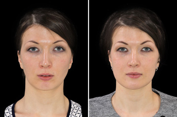 Photographs of the orthognathic surgery patient three-quaters angle view with no smile before and after