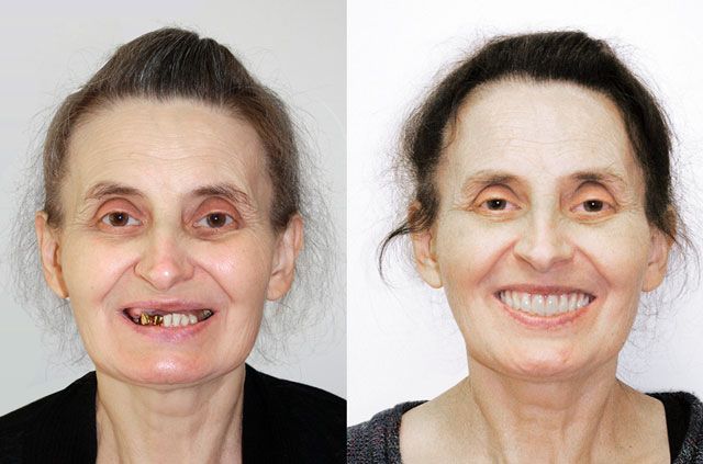 Patient before and after All-on-4 and Teeth-in-a-Day™ Surgery performed at Galleria Oral and Maxillofacial Surgery Center, located at Roseville, California