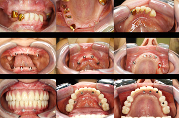 Surgical steps of implant case All-on-4 and Teeth-in-a-Day™