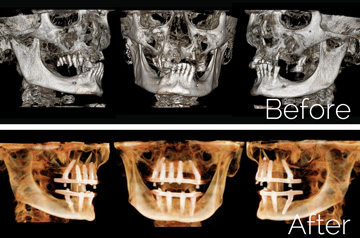 "Panoramic ""Before"" and ""After"" 3D imaging of All-on-4 and Teeth-in-a-Day™ Surgical Case"