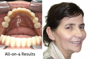 All-on-4 Teeth-in-a-Day™ Frontal, Profile, and Frontal with Smile