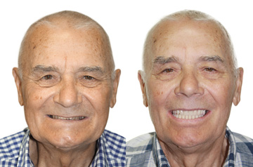 "Immediate Implants and Teeth Frontal View ""Before"" and ""After"""