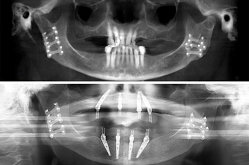 "Immediate Implants and Teeth CT Scan View ""Before"" and ""After"""