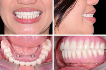 Bite After Immediate Implants and Teeth