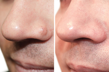 Scarless Mole Removal from Nose Before and After