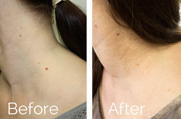 Neck mole scarless removal before and after picture