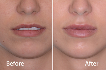 Juvederm® lips before and after fillers with released lips