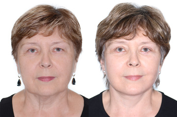 Face lifting surgery results: Before and After, frontal no smile view