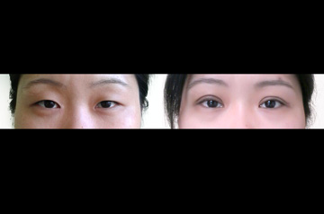 Female patient wanted to correct her asian eyelids