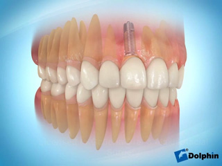 Anterior Tooth Implant